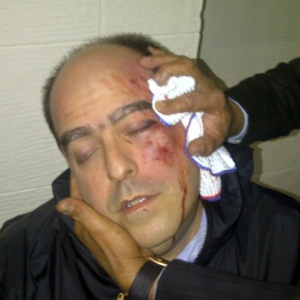 MiguelRivas630sd